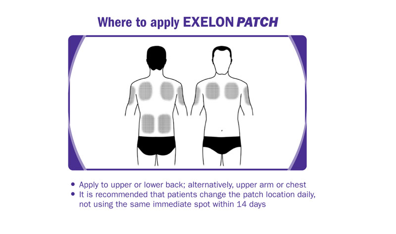 Where to place exelon patch